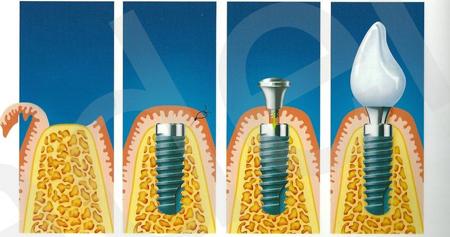 Фото: схема проведения дентальной имплантации