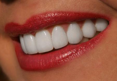 Фото: как отбелить зубы в домашних условиях