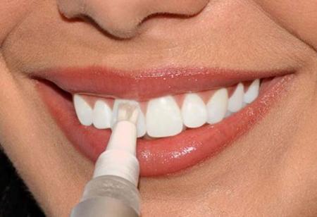 Фото: гель для отбеливания зубов