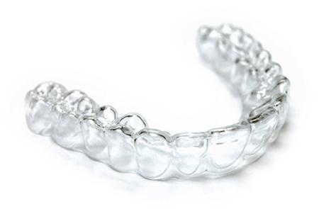 Фото: индивидуальные капы для отбеливания зубов