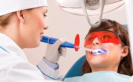 Фото: отбеливание зубов лазером