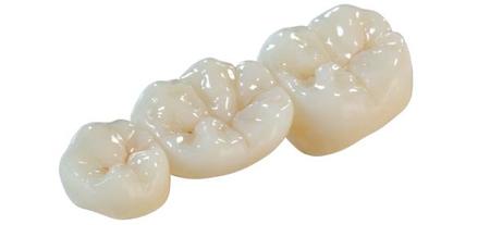 Фото: мостовидный зубной протез