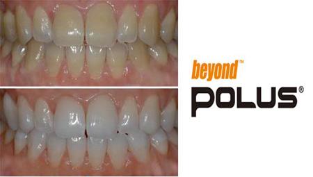 Фото: отбеливание Beyond Polus до и после