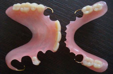 Фото: частично съемные зубные протезы