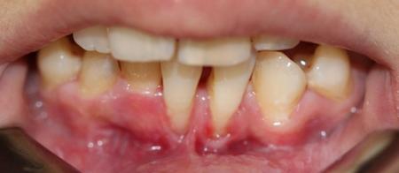 Фото: десны оголяют зубы