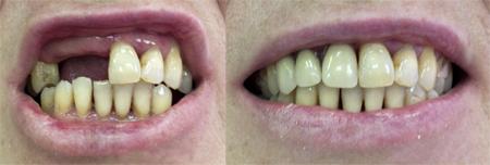 Фото: зубные протезы Акри Фри до и после