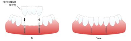 Фото: установка мостовидного зубного протеза