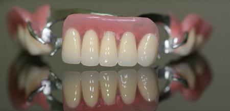 Фото: съемные протезы для передних зубов