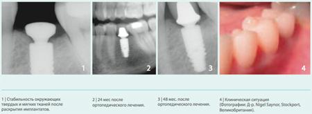 Фото: этапы дентальной имплантации