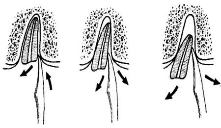 Фото: схема удаления корня зуба