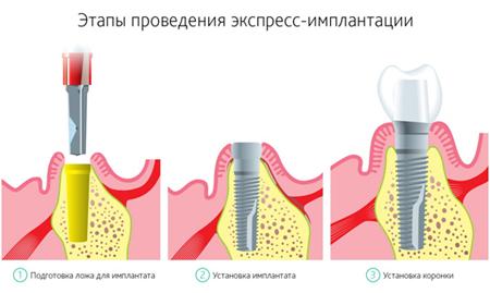 Фото: этапы экспресс имплантации зубов