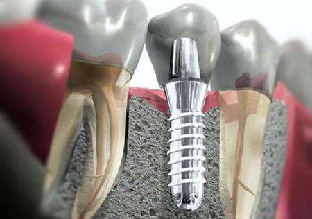 Фото: дентальная имплантация