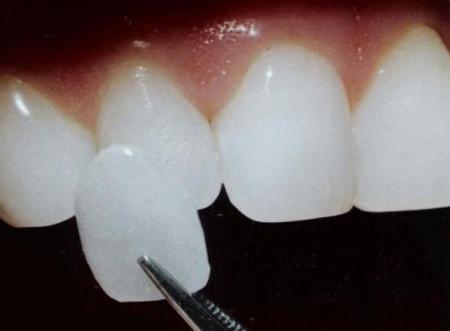 Фото: виниры для передних зубов