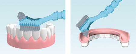 Фото: правильная чистка съемных зубных протезов