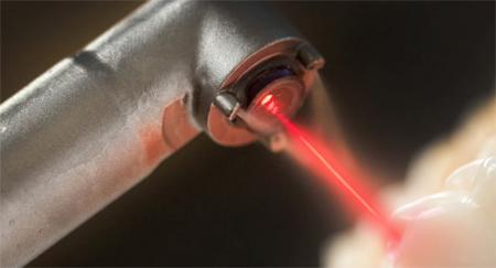 Фото: использование лазера для имплантации зубов