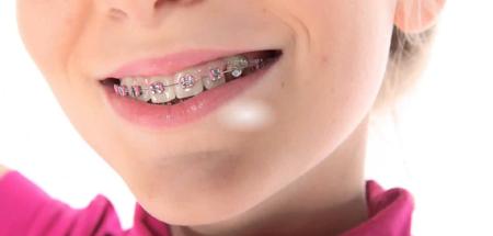 Фото: брекеты перед протезированим зубов металлокерамикой