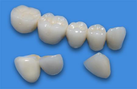 Фото: протезирование зубов металлокерамикой