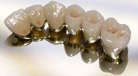 Фото: металлокерамические мостовидные протезы