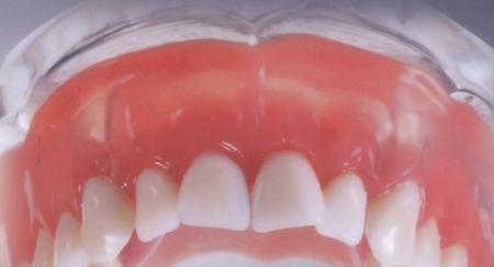 Фото: вставная челюсть на присосках
