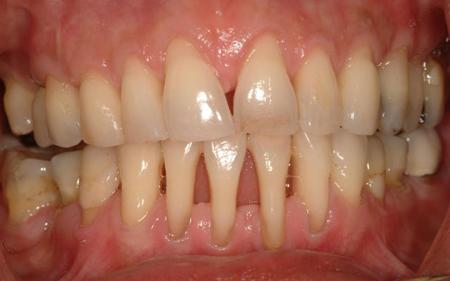 Фото: десна отходят от зубов