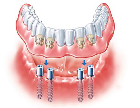 Фото: покрывные зубные протезы