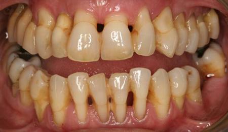 Фото: протезирование зубов при пародонтозе