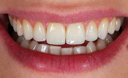 Фото: протезирование передних зубов