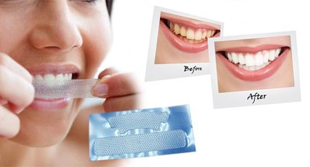 Фото: отбеливающие полоски для зубов