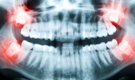 Фото: проблемы зубов мудрости