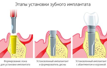 Фото: этапы имплантации зуба