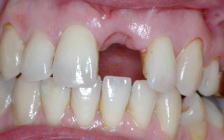 Фото: лунка после удаления зуба
