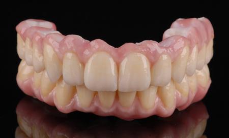 Фото: съемные протезы при полном отсутствии зубов