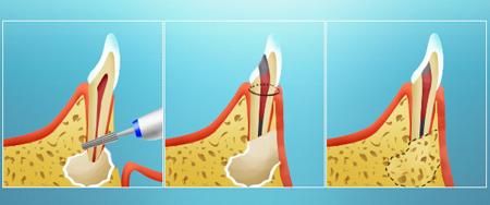 Фото: удаление кисты на зубе