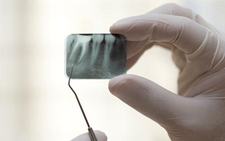Фото: киста зуба на рентгене