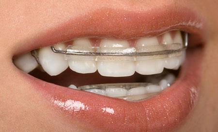 Фото: металлические пластинки для выравнивания зубов