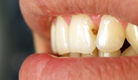 Фото: кариес передних зубов