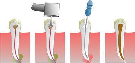 Фото: лечение каналов зуба