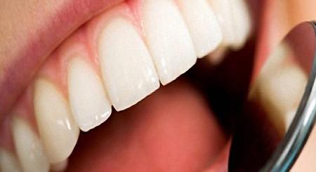 Фото: лечение передних зубов