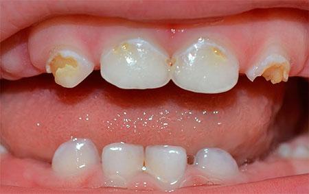 Фото: кариес молочных зубов