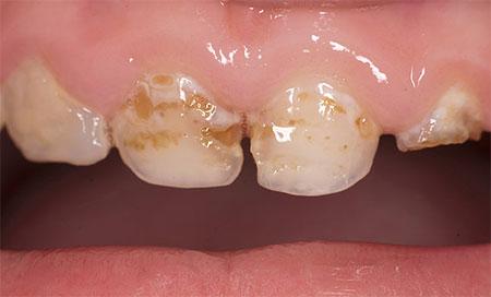 Фото: кариес молочных зубов у детей
