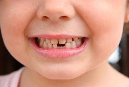 Фото: молочные зубы ребенка