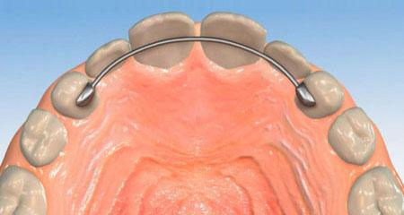 Фото: ретейнеры для зубов