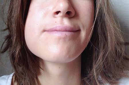 Фото: опухла десна около зуба