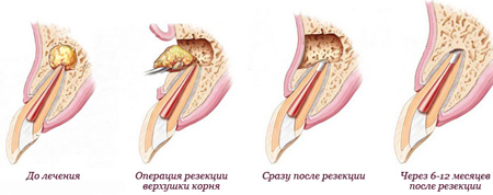 Фото: лечение гранулемы на корне зуба
