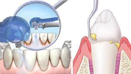 Фото: методы удаления камней с зубов