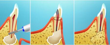 Фото: удаление кисты зуба хирургическим путем