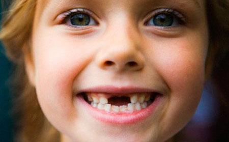 Фото: смена зубов у детей