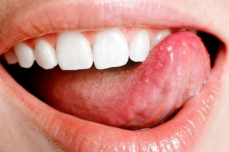 Фото: отпечатки зубов на языке по бокам