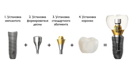 Фото: порядок установки имплантов Dentium