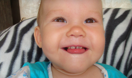 Фото: серебрение зубов у детей